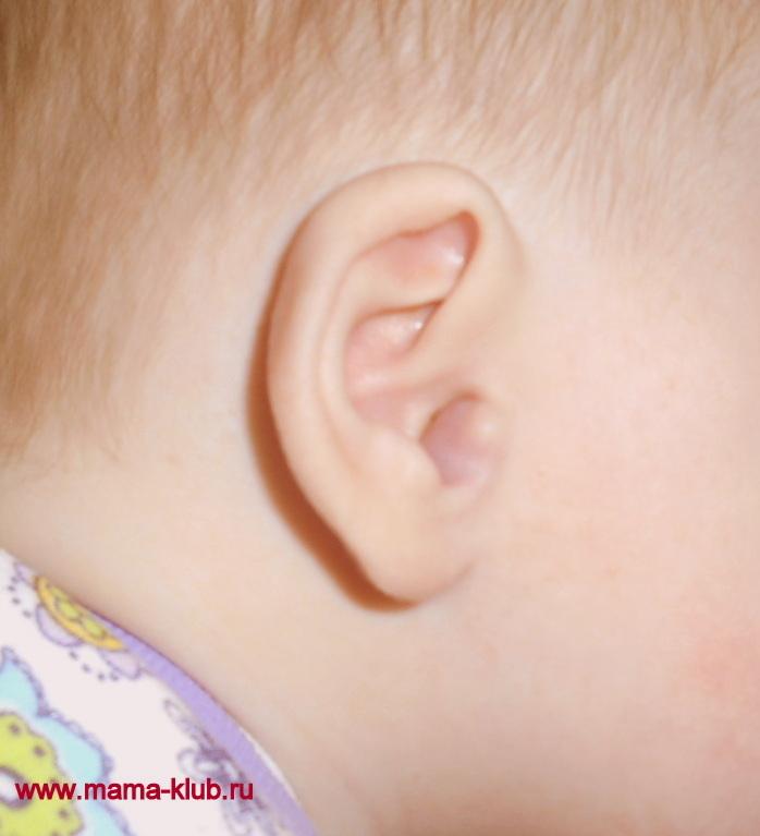 гемангиома на плече у ребенка фото
