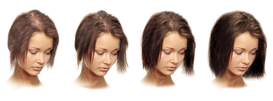 Лечат ли выпадение волос